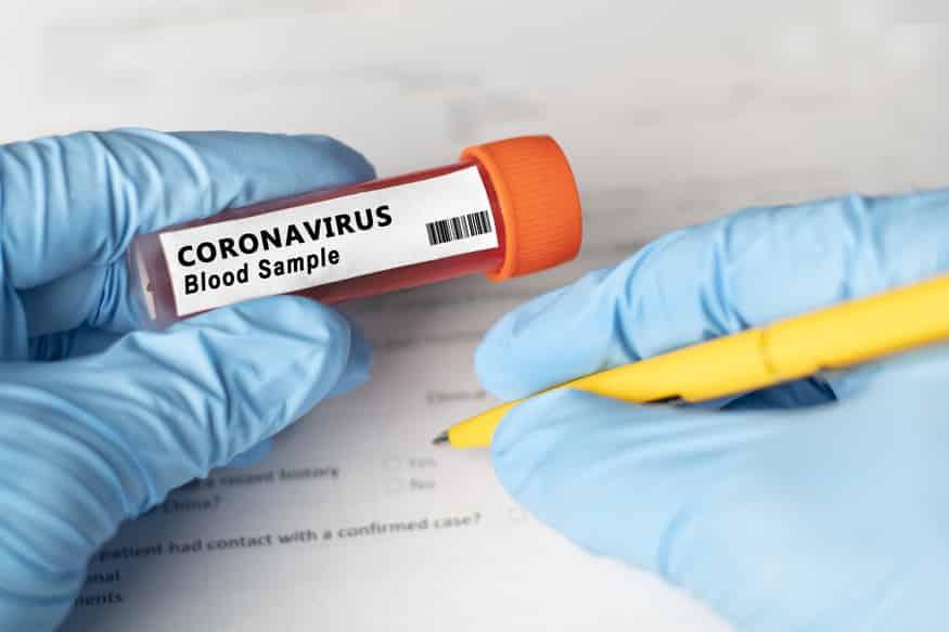 OMS: Numărul de decese cauzate de COVID-19 va crește în perioada octombrie-noiembrie