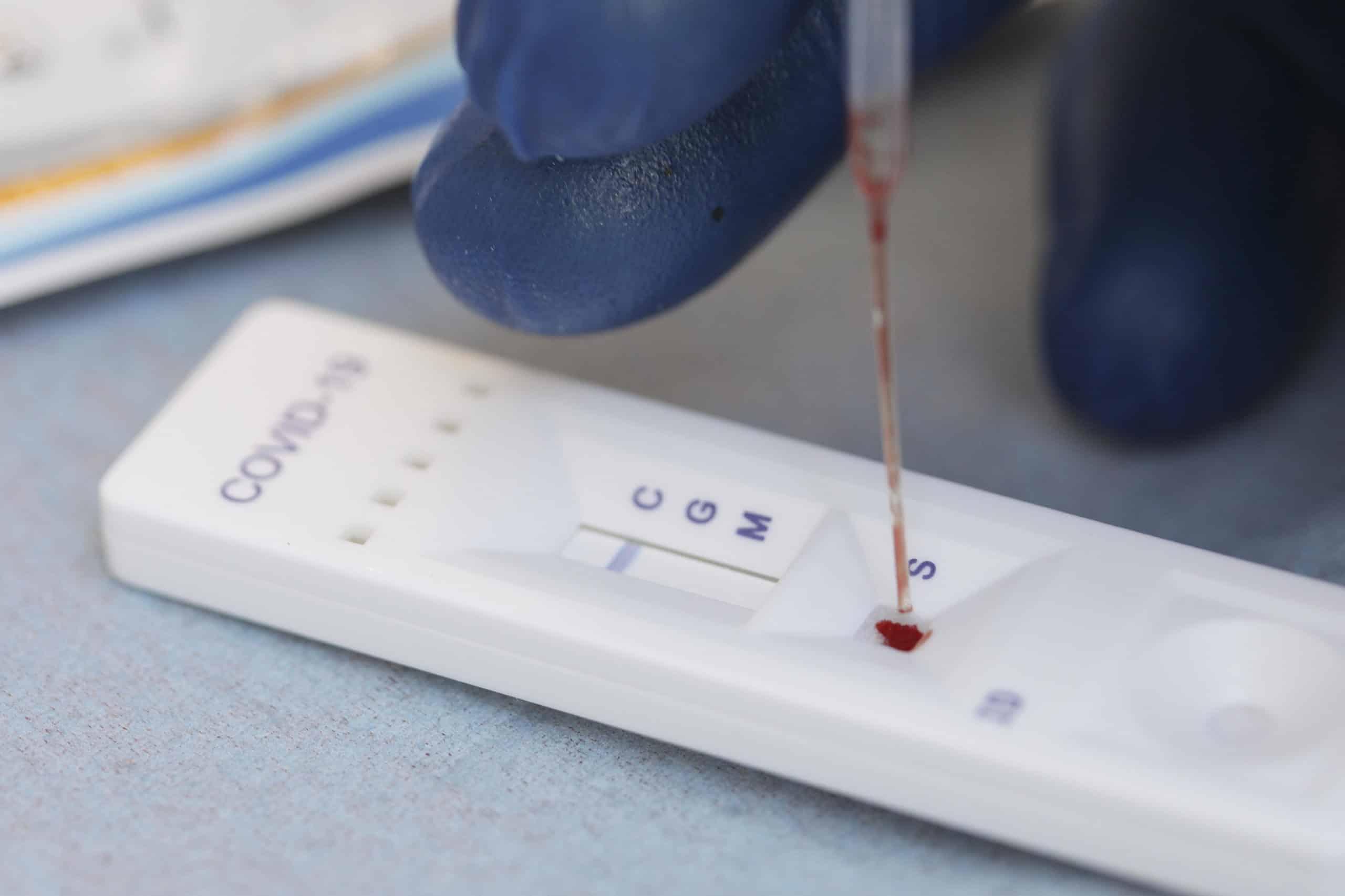 Numărul cazurilor de infectare cu noul coronavirus la nivel global a ajuns miercuri la 60 de milioane